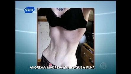 Anorexia faz mulher pesar 32 kg - Notícias - R7 Balanço Geral