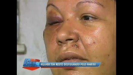 Mulher tem rosto desfigurado pelo marido em Niterói (RJ) - Rio de ...