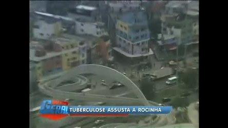 Casos de tuberculose assustam moradores da Rocinha (RJ) - Rio ...