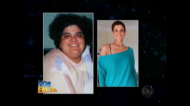 Ex- obesa perde 76 kg sem cirurgias ou remédios - Entretenimento ...