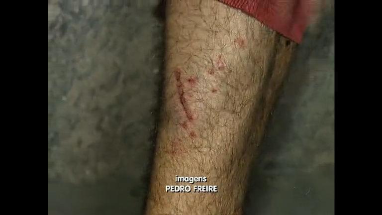 Jornalista vítima de balas de borracha relembra momentos de ...