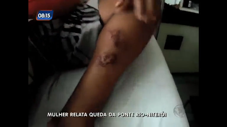Mulher que caiu da ponte Rio- Niterói relata acidente - Rio de ...