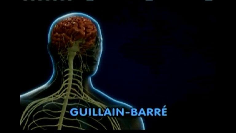 Guillain-Barré faz vítimas na Bahia