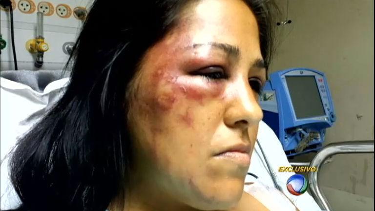 Mulheres Marcadas é a nova série do JR que mostra a violência ...