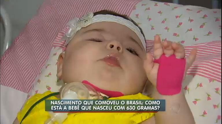 Dois anos depois, Balanço Geral SP reencontra bebê prematuro ...