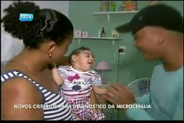 Novos critérios para diagnóstico da microcefalia - Bahia - R7 ...