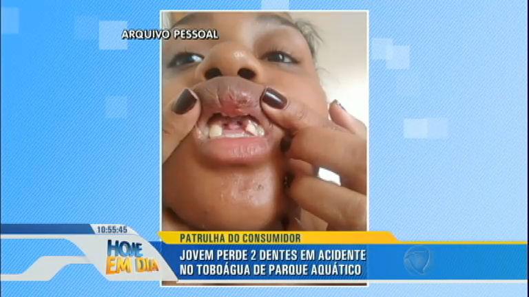 Patrulha do Consumidor: jovem perde dois dentes em toboágua de ...