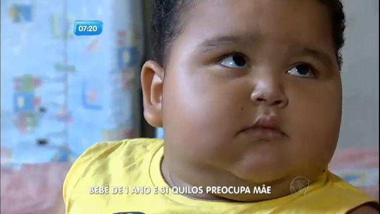 Obesidade infantil: bebê de 31 kg preocupa mãe e intriga médicos ...