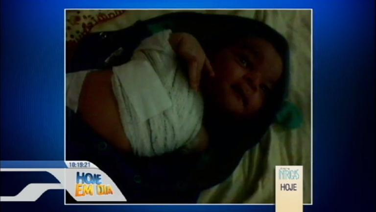 Secretaria de Saúde do DF investiga o que levou a fratura de braço ...
