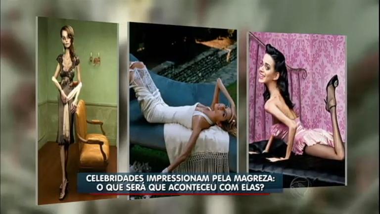 """Celebridades """"anoréxicas"""" fazem alerta contra a doença em ..."""