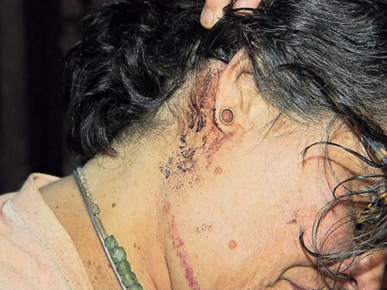Mulher é agredida ao tentar furar blitz da Lei Seca em Laranjeiras ...