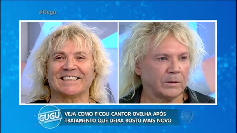 Transformação: veja como ficou o rosto do cantor Ovelha após ...