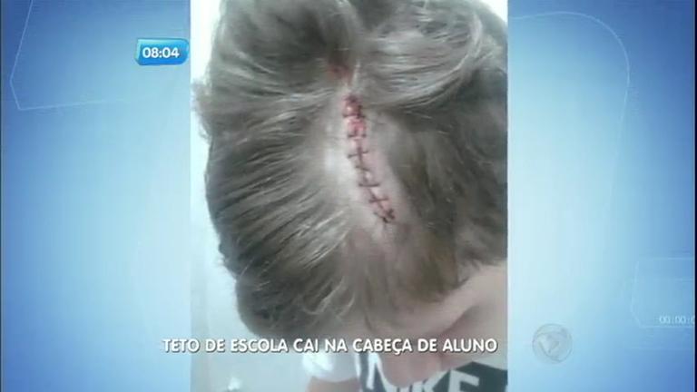 Parte de teto cai na cabeça de aluno em escola do ABC - Notícias ...
