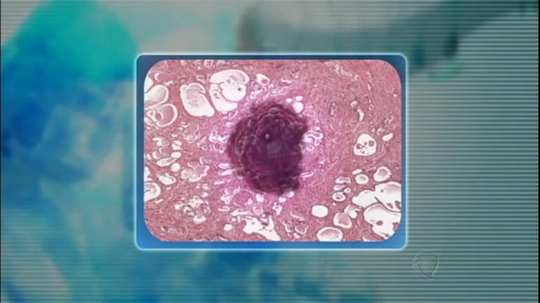 Tratamento inovador promete curar o câncer de próstata sem cirurgia