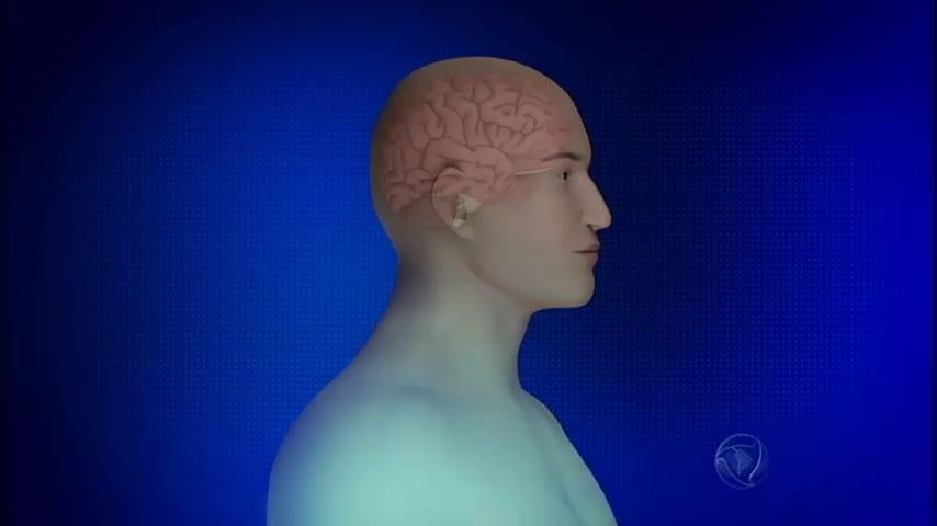 Doença rara, distonia faz o paciente perder o controle do corpo de ...
