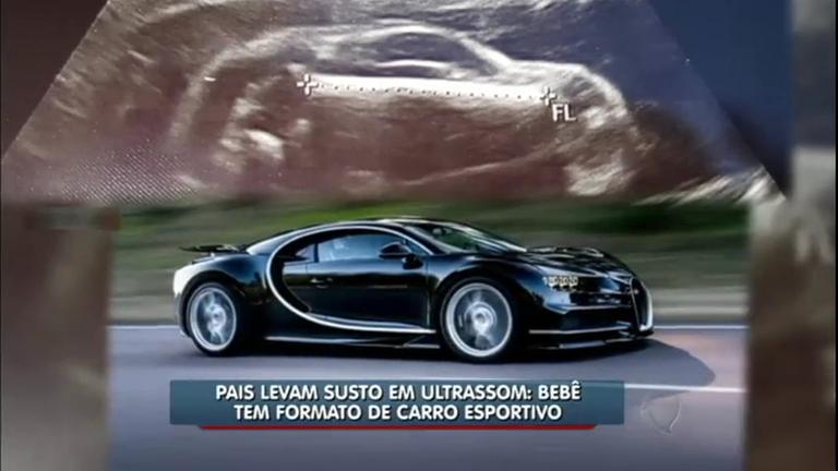 Pais levam susto em ultrassom: bebê tem formato de carro esportivo ...