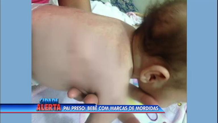 Pai é preso após agredir e deixar marcas de mordida em bebê de 42 dias