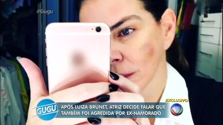 """""""Ele me machucou demais"""": Gisele Fraga relata agressão que ..."""