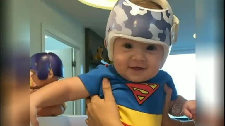 Tratamento com 'capacete' pode curar bebês que nascem com ...