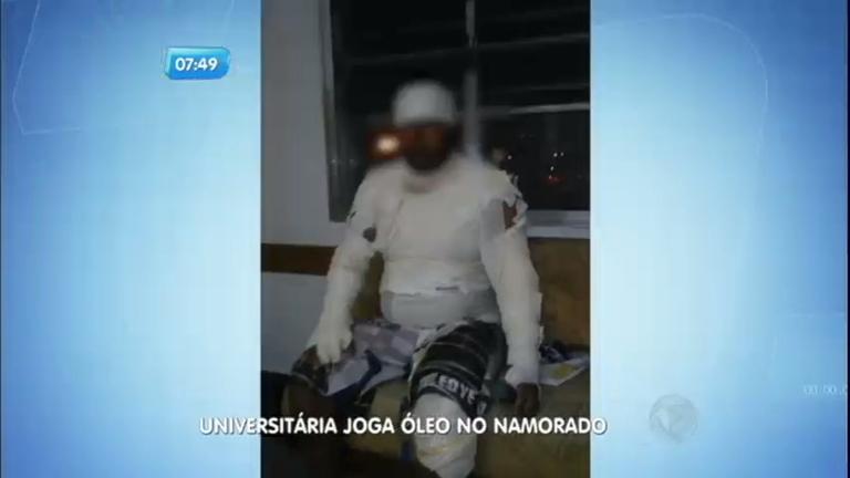 Mulher joga óleo quente em namorado em Bertioga (SP) - Notícias ...