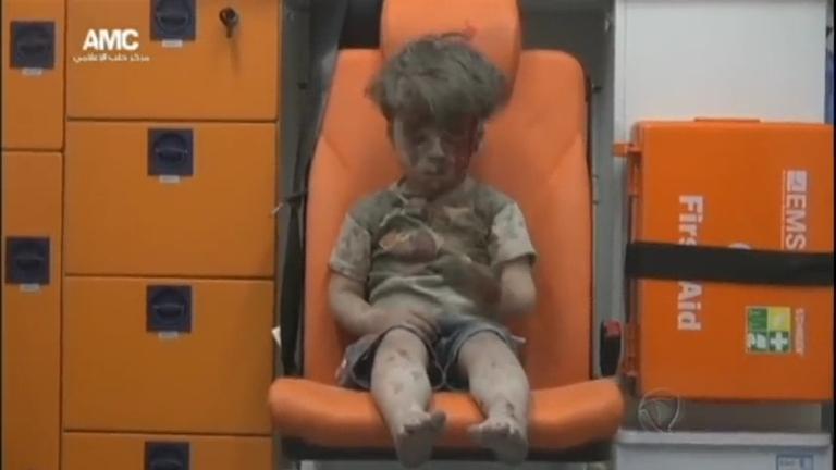 Imagem de uma criança ferida na Síria chocou o mundo nesta ...
