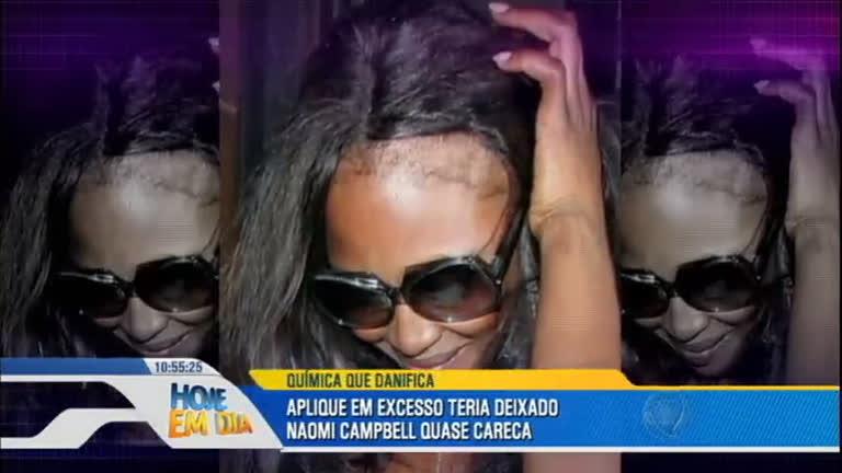 Celebridades perdem cabelos após aplicar produto químico em excesso
