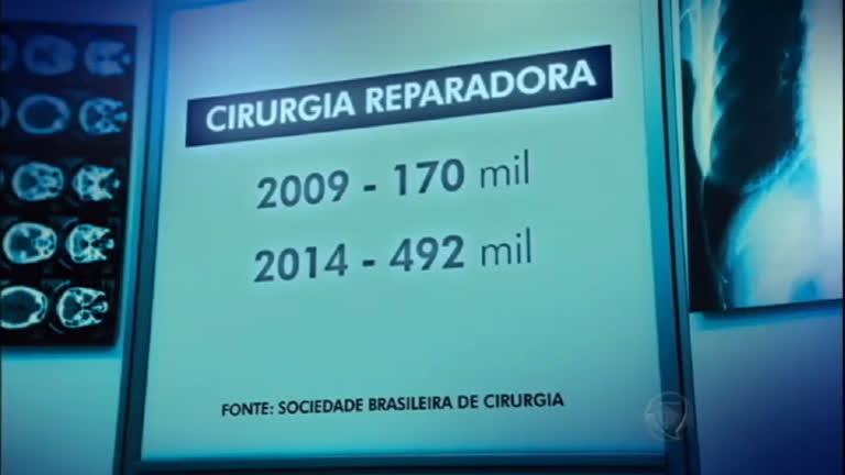 Número de cirurgias plásticas tem aumento de 200% em cinco anos ...