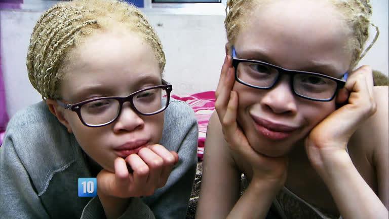 Gêmeas albinas que sonham em ser modelos realizam o sonho de ...