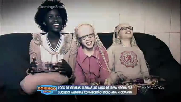 Conheça a história das gêmeas albinas, que são filhas de pais ...