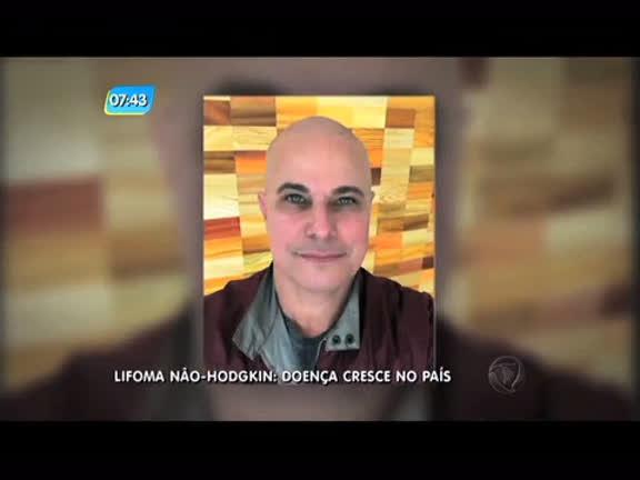 Casos de linfoma não-Hodgkin cresce no país