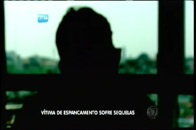 Vítima de espancamento sofre sequelas - Bahia - R7 Bahia no Ar