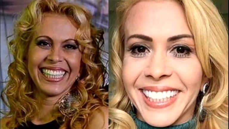 79da6858efaeb Conheça as lentes de contato para os dentes - RecordTV - R7 Domingo  Espetacular