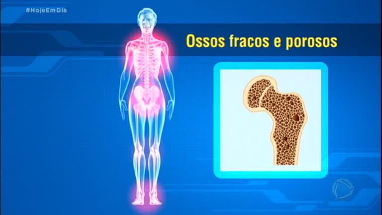 Osteoporose atinge cerca de 10 milhões de brasileiros